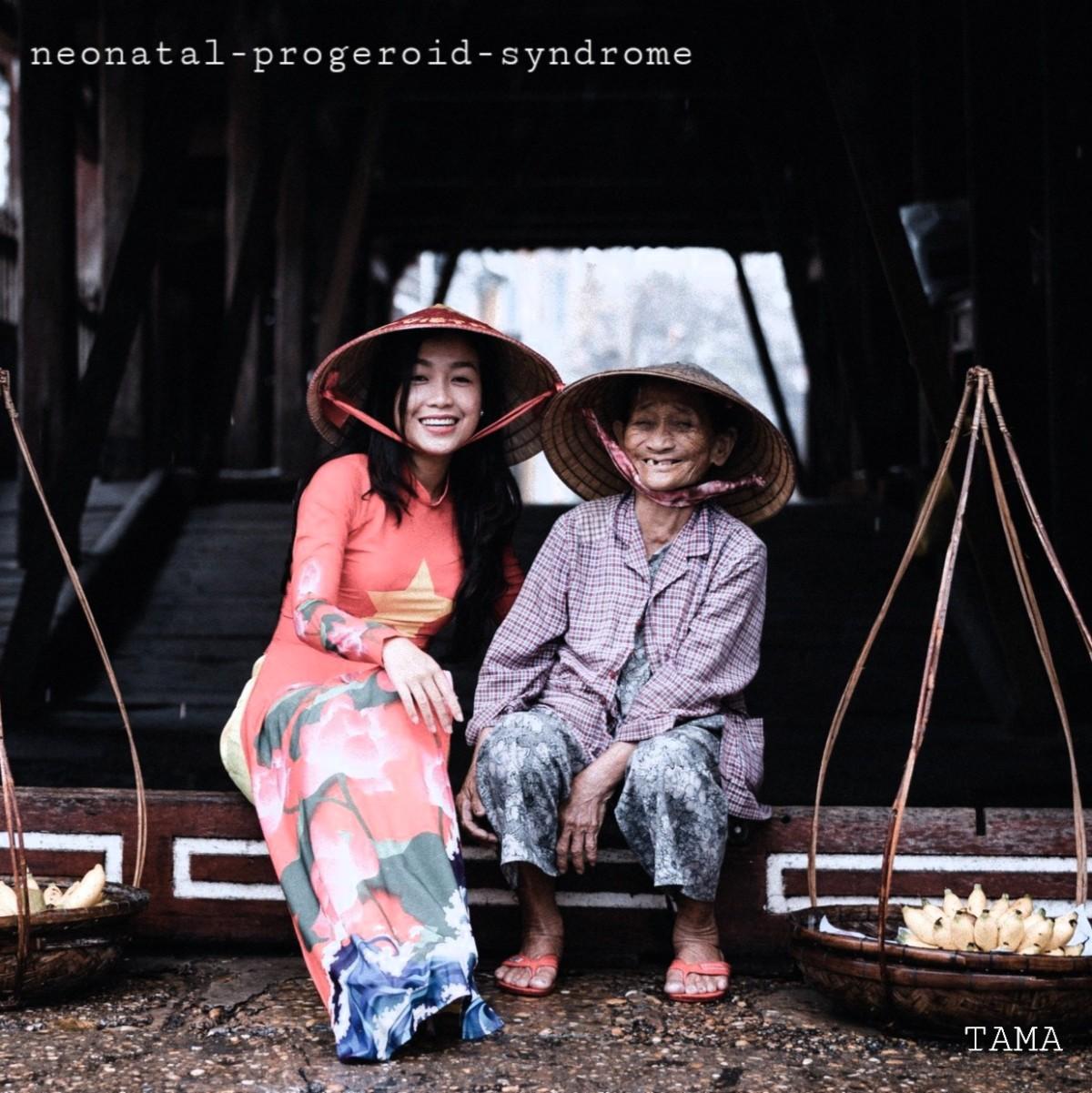 Neonatal Progeroid Syndrome