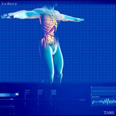Organ Trade